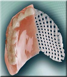 fast_splint grille dentier